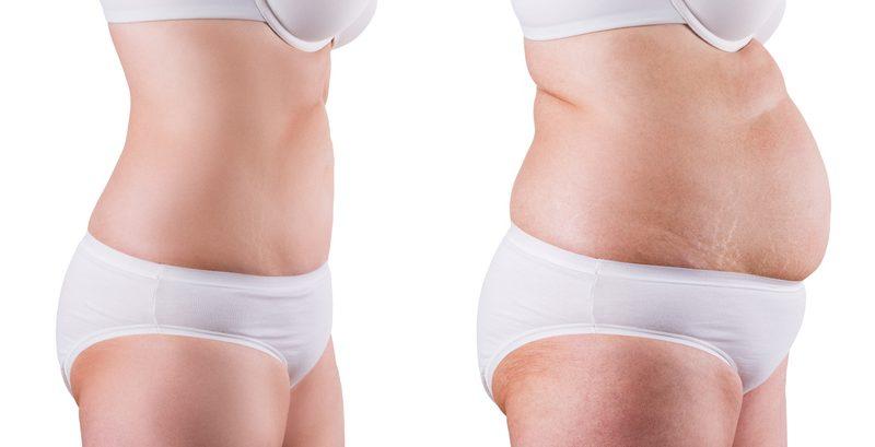 Anna (42) nahm 8 Kilo ab