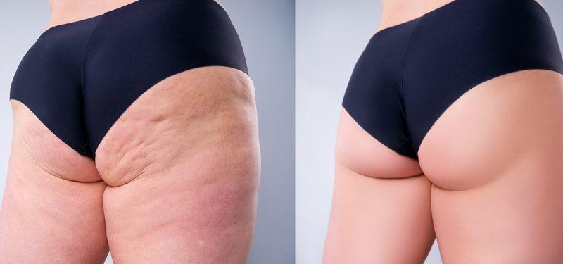 Tina (60) besiegte ihre Cellulitis